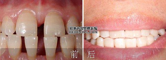 瓷贴面修复牙齿稀疏